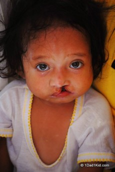 Child with cleft lip