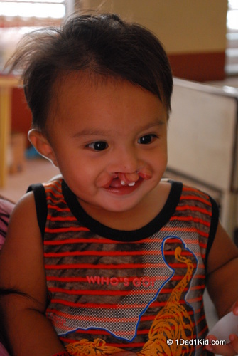 cleft lip, philippines, wretched man